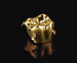Abbildung einer Goldkrone